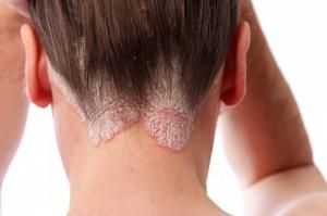 psoriasis en la cabeza-Psicólogos-Gran-Vía