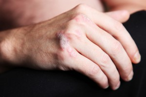 psoriasis en las manosPsicólogos-Gran-Vía